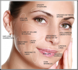 dermal fillers, Joyous Skin, Granby CO